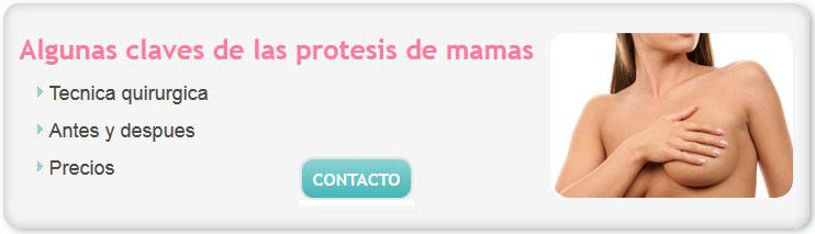 cirugia de mamas precios argentina 2014, aumento de mamas, cirugia de lolas, implantes de mamas, cirugía de mamas, protesis de mamas, aumento de mamas+costo argentina, pexia definicion