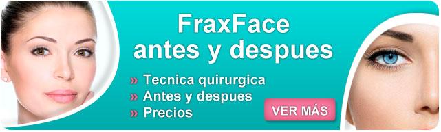 fraxface antes y despues, fraxface opiniones, fraxface precio, fraxface estrias, como quitar las arrugas dela cara, arrugas en la cara, lifting de cara, plasma rico en plaquetas en cara,