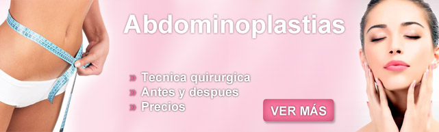 abdominoplastia precios, abdominoplastia costo, abdominoplastia recuperacion, abdominoplastia postoperatorio, abdominoplastia y lipoescultura, abdminoplastia,